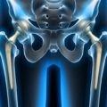 endoproteza biodra